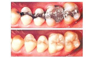 mercury dental filling